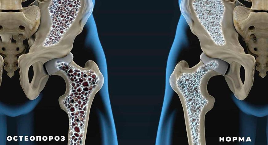 Остеопороз, или Хрупкие кости