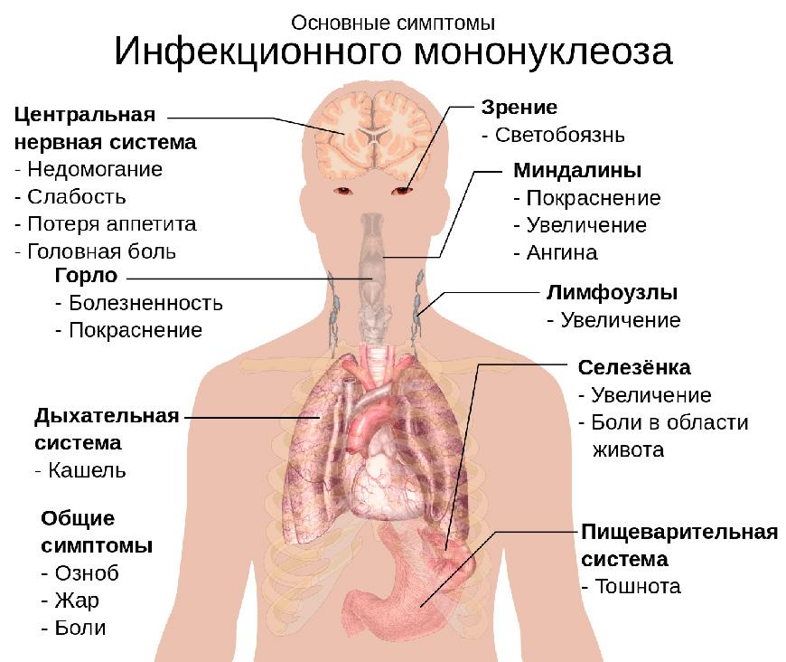 Инфекционный мононуклеоз. Симптомы. Диагностика.