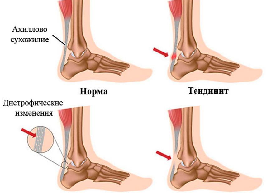 Тендинит ахиллова сухожилия у спортсменов
